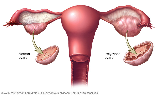 PCOS Diaries: I Have PCOS. This is What it Is…